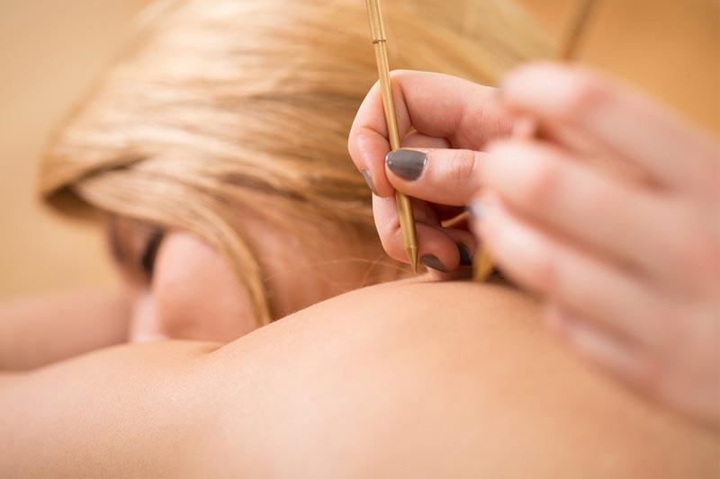 acupuntura-en-el-embarazo